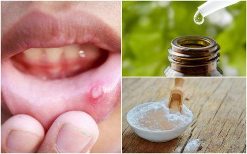 Soulagez les aphtes buccaux grâce à ces 6 remèdes naturels