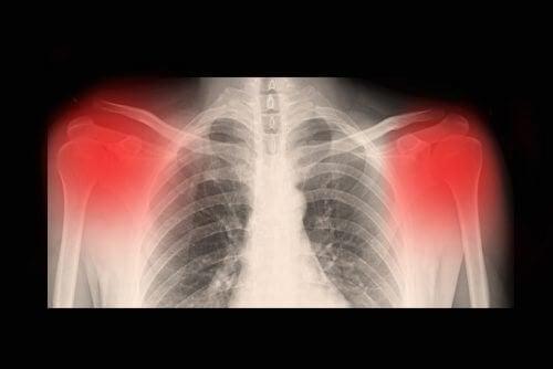 Qu'est-ce que l'arthrose ?