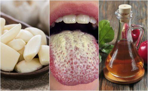 Contrôlez la prolifération du Candida albicans avec 6 remèdes naturels