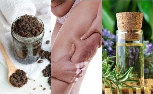 Réduire l'apparence de la cellulite avec 5 remèdes