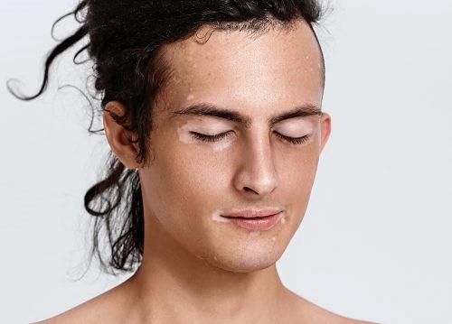 dépigmentation