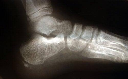 fasciite plantaire et l'anatomie du pied