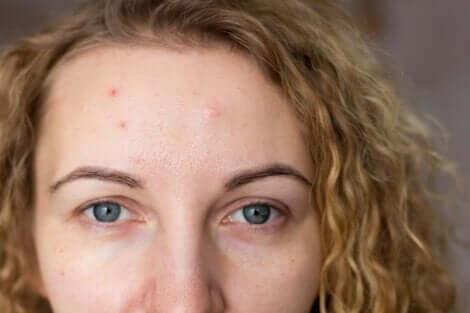 femme ayant de l'acné