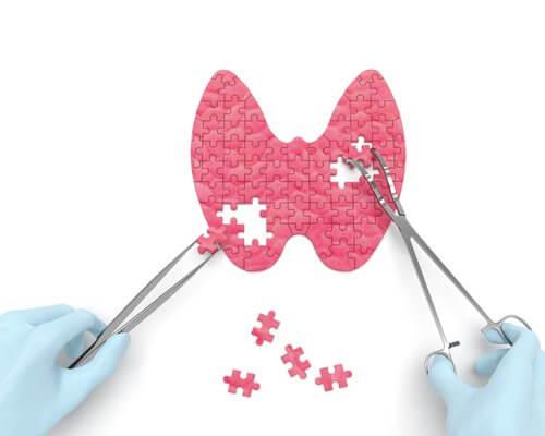 Comment détecter les problèmes de thyroïde ?