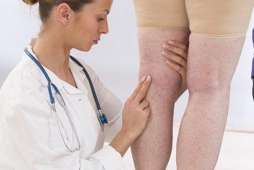 l'inflammation des extrémités est un mauvais signe pour la santé des femmes