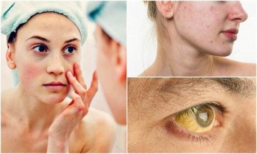 7 symptômes qui affectent votre visage lorsque vous souffrez de carences nutritionnelles