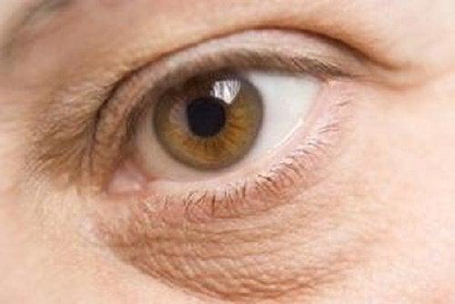 les yeux gonflés peut être un signe de carences nutritionnelles