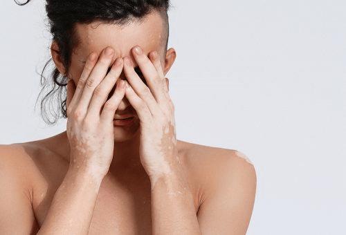 vitiligo mains