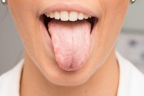 Les marques sur la langue : ce qu'elles signifient ...