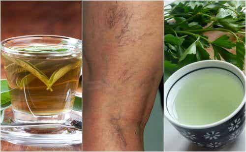 5 infusions diurétiques qui vous aideront à combattre les varices