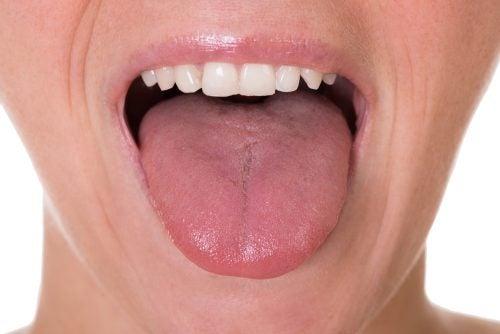 Les 5 premiers symptômes possibles du cancer de la langue