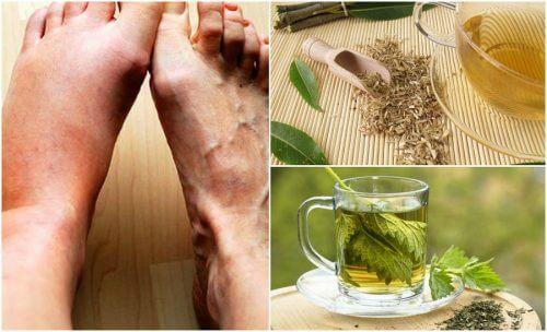 5 remèdes maison pour faire baisser les niveaux d'acide urique