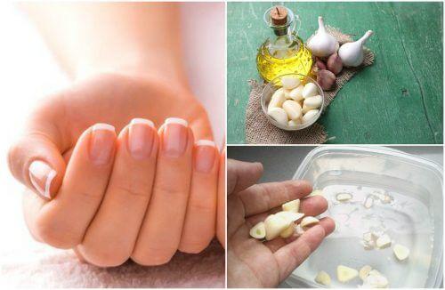 5 traitements maison pour la pousse des ongles