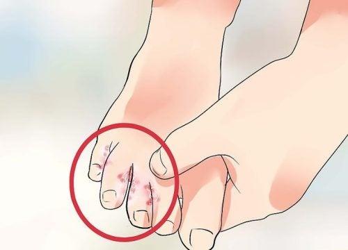 7 remèdes naturels pour traiter le pied d'athlète