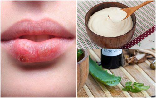 7 traitements d'origine naturelle pour combattre l'herpès labial