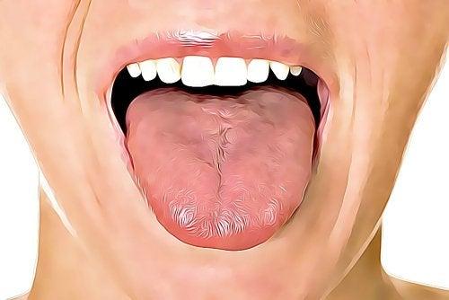 La langue, un formidable outil de diagnostic