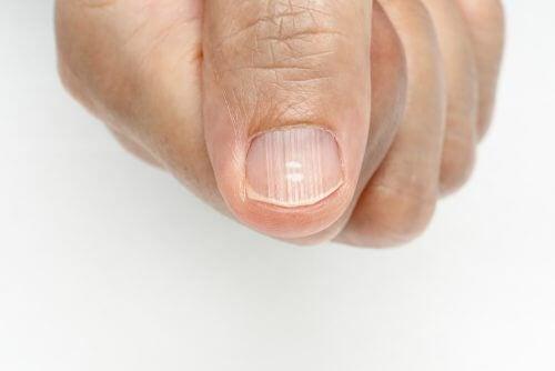 Comment éliminer les lignes sur les ongles ?