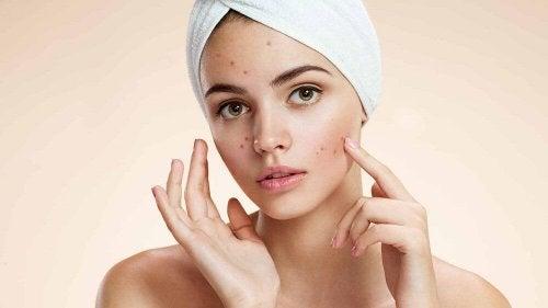 Secrets de beauté contre l'acné