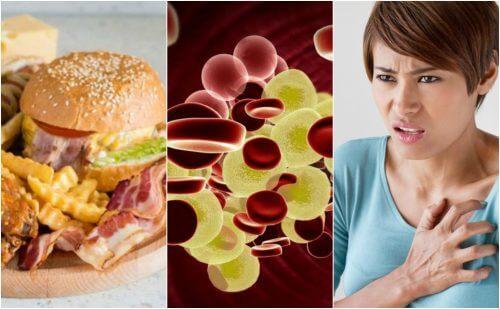 Hypercholestérolémie : pourquoi est-ce un danger pour la santé et comment réduire le risque ?