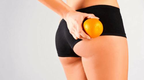 7 remèdes naturels pour réduire la cellulite