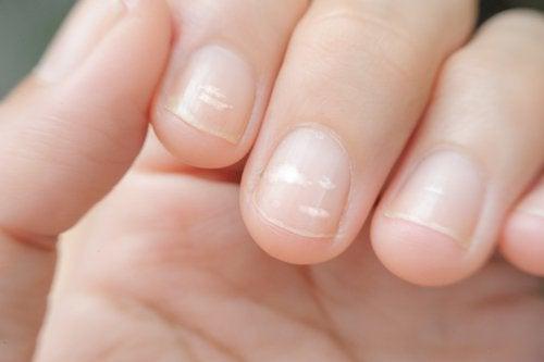 un déficit en zinc peut provoquer des lignes sur les ongles