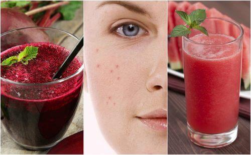 Comment combattre l'acné grâce à 5 smoothies détoxifiants