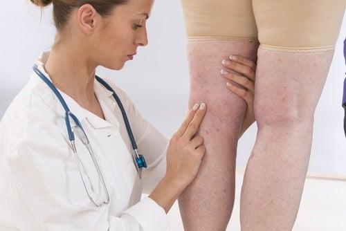 inflammation des jambes