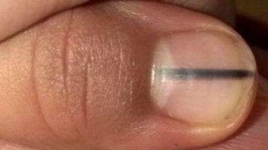 ligne-noire-ongle