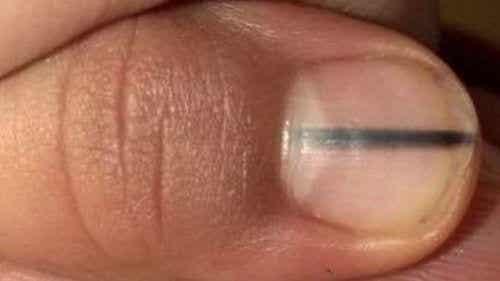 Une ligne noire sur vos ongles pourrait-elle être un signe de cancer ?