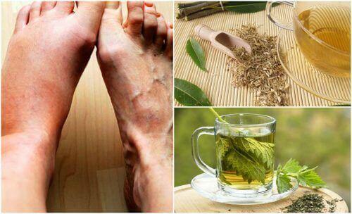 5 remèdes pour faire baisser son taux d'acide urique