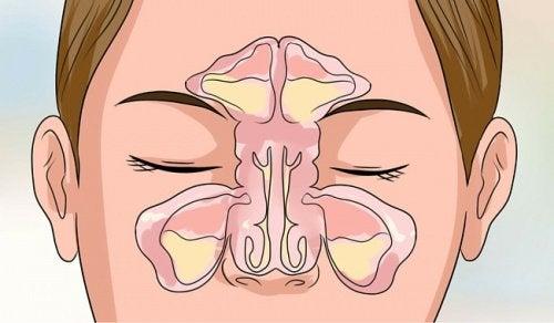 schéma du nez