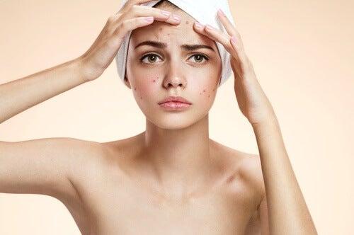 Utilisation de la tomate comme masque pour combattre l'acné.