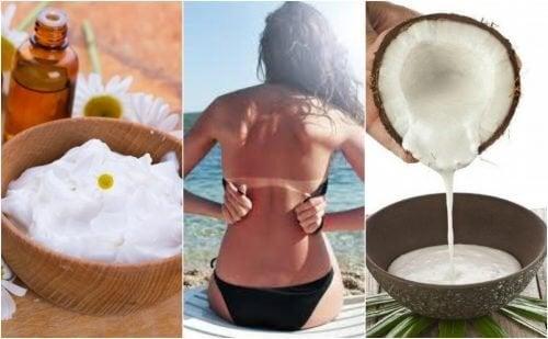 Comment soigner les coups de soleil avec 5 remèdes naturels