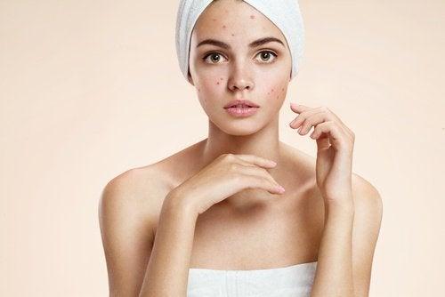 Vivre sans l'acné.