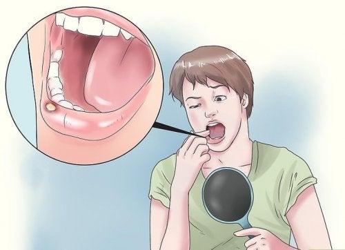 8 remèdes naturels pour traiter les ulcères de la bouche