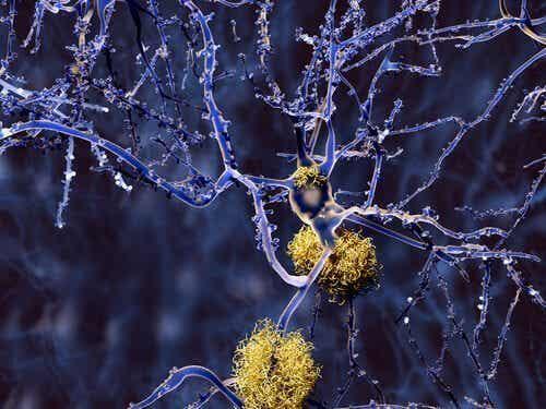 Les types de démences qui ne sont pas Alzheimer