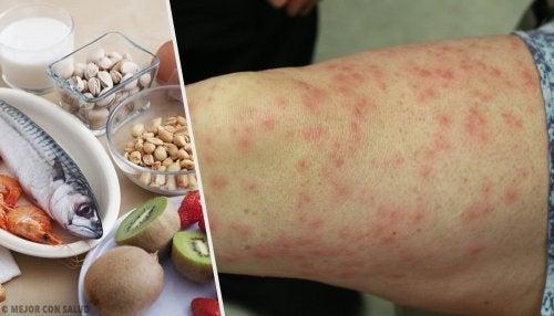Connaître les aliments les plus allergènes et leurs substituts