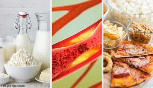 Les aliments qui obstruent les artères