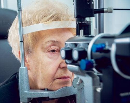 cataracte sénile
