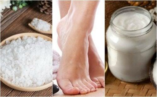 Comment ramollir les cors des pieds avec 5 remèdes naturels