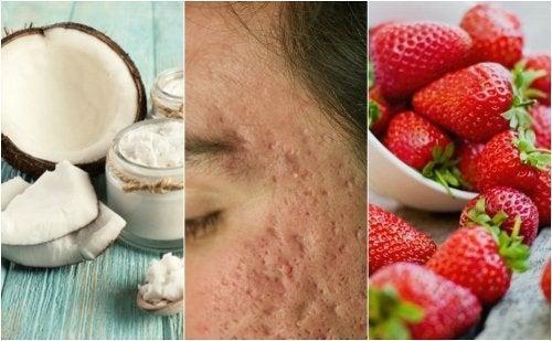 Comment atténuer les cicatrices d'acné avec 5 traitements maison
