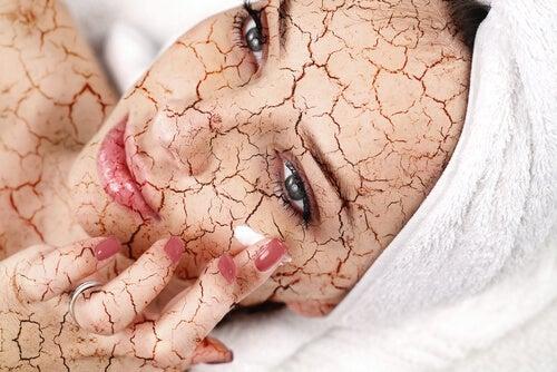 caractéristiques de la peau sèche