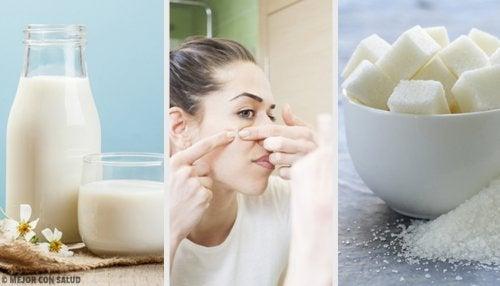 Éliminez les impuretés de votre peau avec ces 4 masques