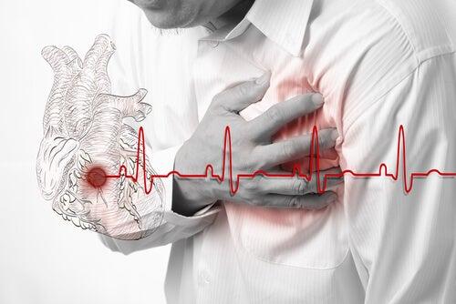 L'infarctus aigu du myocarde