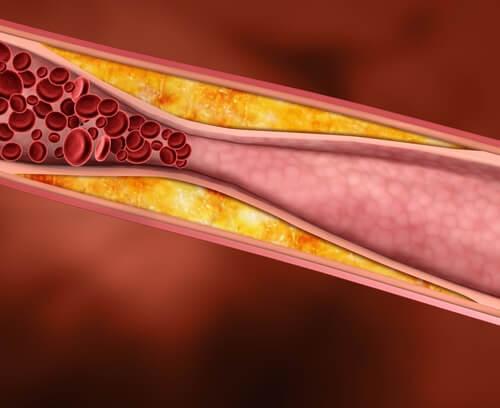 Le jus de raisin réduit les taux de cholestérol.