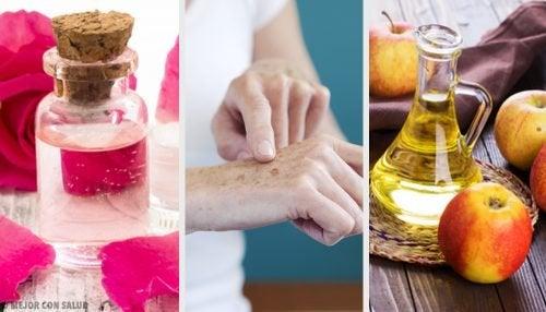 8 remèdes naturels pour faire disparaître les taches sur les mains