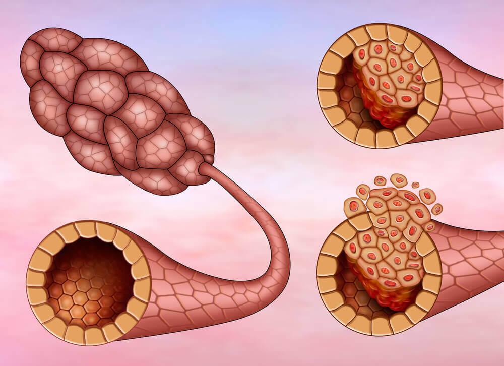 Types de cancer du sein