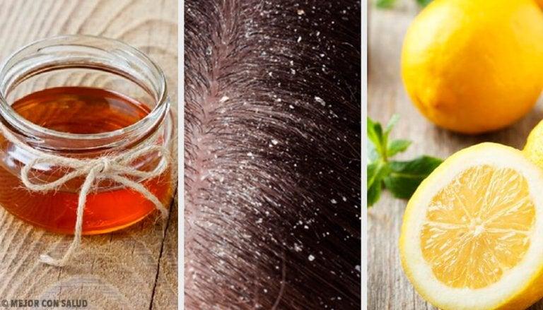10 remèdes naturels efficaces contre les pellicules