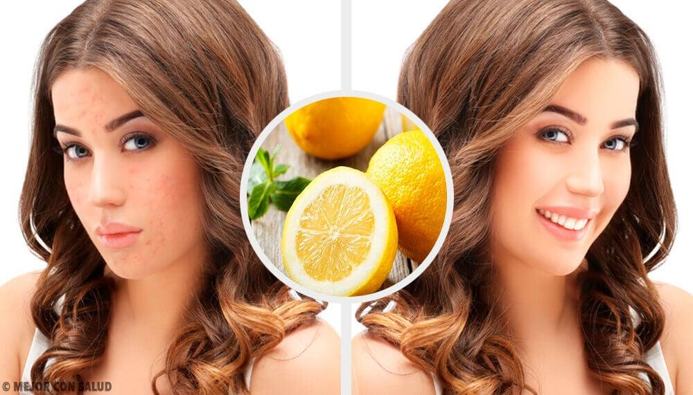 4 remèdes naturels maison pour éliminer les cicatrices d'acné
