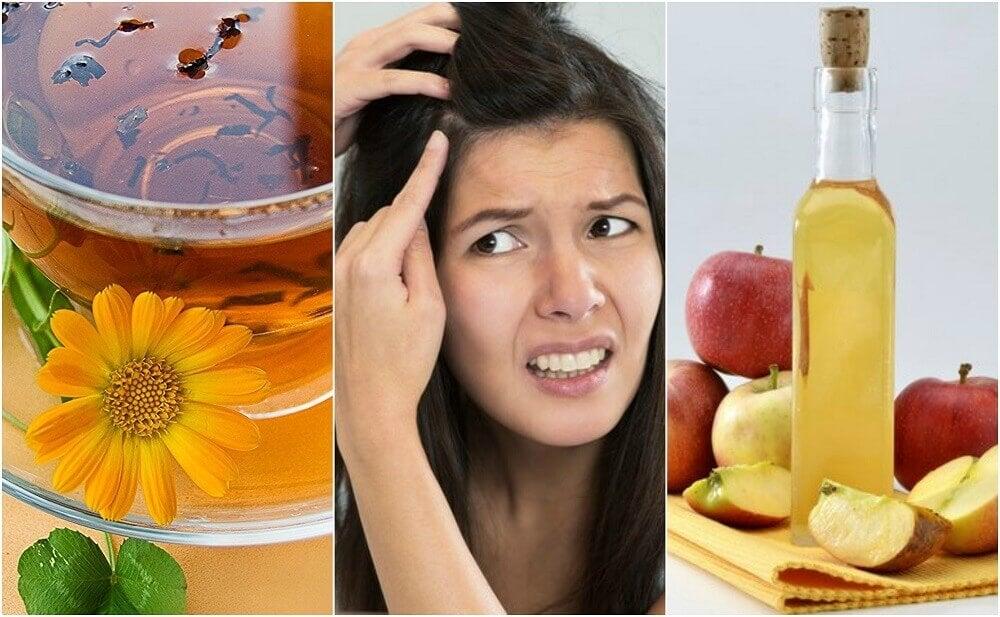 5 remèdes naturels pour apaiser le cuir chevelu sensible